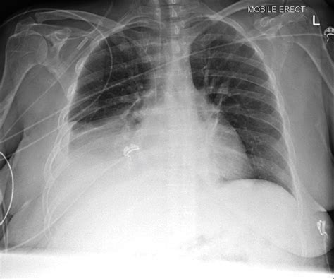 Pulmonary Consolidation   Chest X-Ray - MedSchool