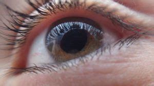 How to Make Homemade Eye Drops for Cataract and Glaucoma 2