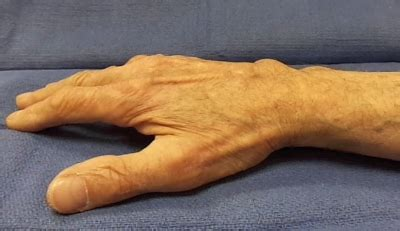Tuck Sign   Hand Surgery Source