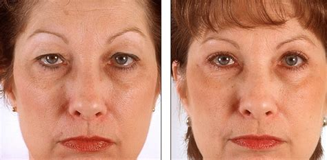 Eyelid Surgery - Photos, Recovery time, Procedure, Cost