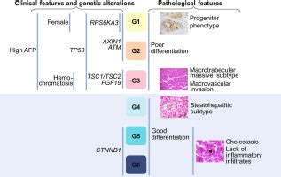 Histological subtypes of hepatocellular carcinoma are