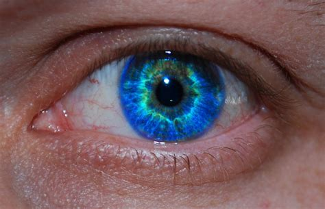 A Little Lump Or Bump On The Eyelid? Beware, It Could Be