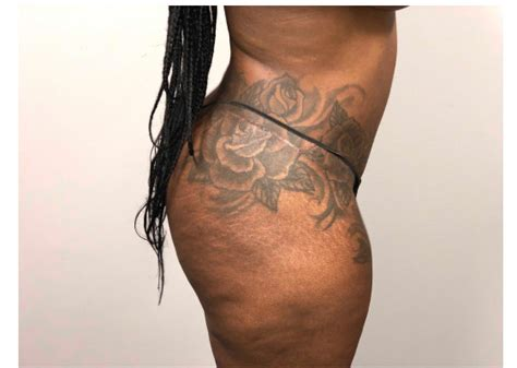 Revision abdominoplasty and 360 liposuction | Before and
